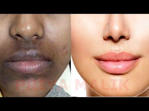 How To Remove Dark Black patches, Dark Spots,Hyper pigmentation, Around Your Mouth | PRIYA MALIK