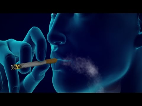 How Smoking Causes Lung Cancer