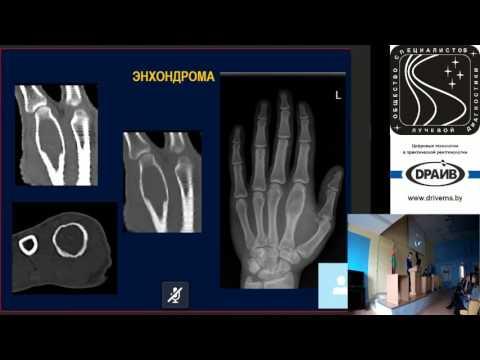 Дифференциальная диагностика злокачественных опухолей костей: доброкачественные образования
