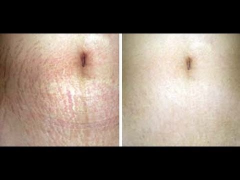 How To Get Rid Of Stretch Marks 🎀
