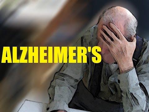 Top 10 IMPORTANT Alzheimer's Disease & Dementia Facts | 2017 | TheCoolFactShow EP84
