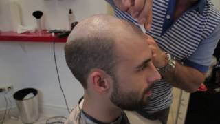 Video Hair Replacement for Men at The Hair Clinic Montreal featuring The Non Surgical Hair Transplant MP3, 3GP, MP4, WEBM, AVI, FLV Juli 2018