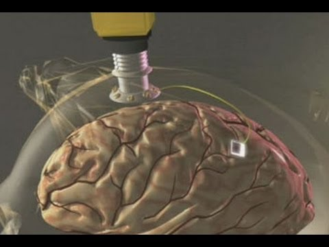 "Government Unveils Brain Implant That ""Restores Lost Memories"""