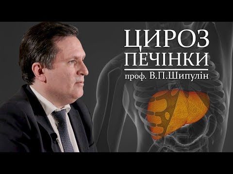 Відеолекція ЦИРОЗ ПЕЧІНКИ. Шипулін В.П.