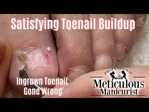 Videos de uñas -  Satisfying Excess Toenail Buildup Removal Black Friday Specials
