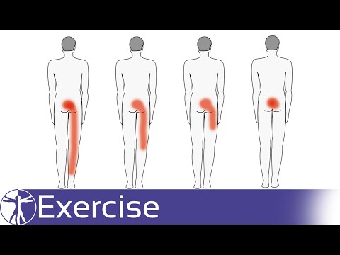Direction Specific Exercises for Low Back Pain | Directional Preference