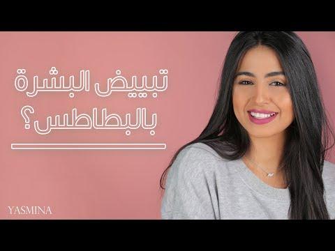 العرب اليوم - شاهد: خلطة تبييض الوجه بالبطاطس وتجربتها على البشرة السمراء