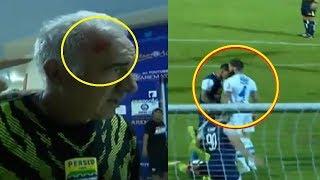 Video Pelatih Persib Mario Gomez Terluka Akibat Rusuh Pertandingan Arema Vs Persib Ricuh MP3, 3GP, MP4, WEBM, AVI, FLV April 2018