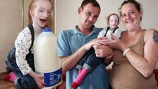 Video The world's smallest girl Charlotte Garside MP3, 3GP, MP4, WEBM, AVI, FLV Agustus 2018