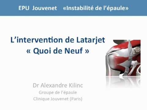 comment guerir luxation epaule