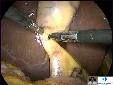 Video laparoscopic cholecystectomy download in MP3, 3GP, MP4, WEBM, AVI, FLV January 2017