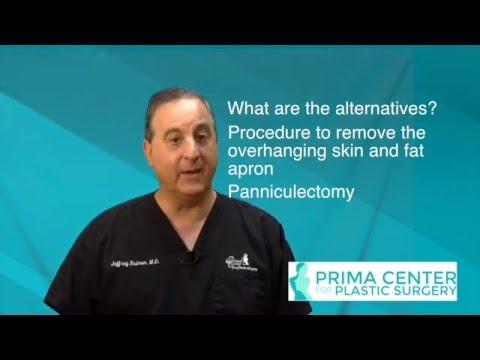 Obesity and abdominoplasty