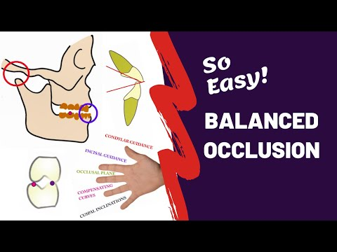Balanced Occlusion Made Easy | PROSTHODONTICS