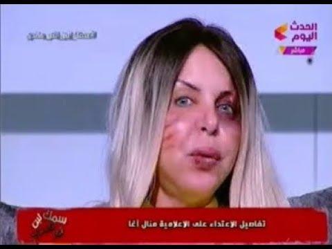 """مذيعة قناة """"الحدث"""" تظهر مضروبة على الهواء لتدين زوجها.. وتكشف أنه تمثيل"""