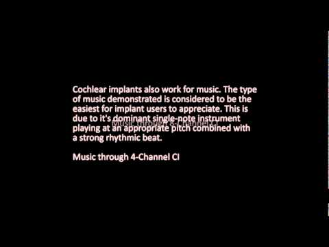 Cochlear Implant Simulations Cochlear Implant Help