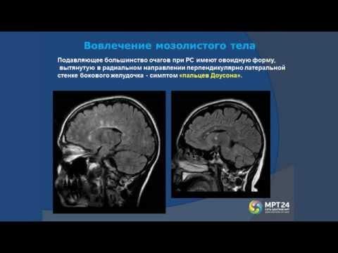 Демиелинизирующие заболевания на МРТ