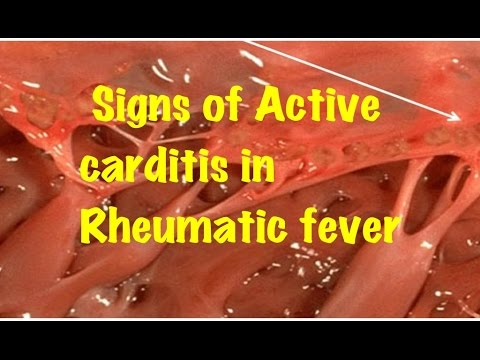Signs Suggestive of Active Carditis in Rheumatic Fever