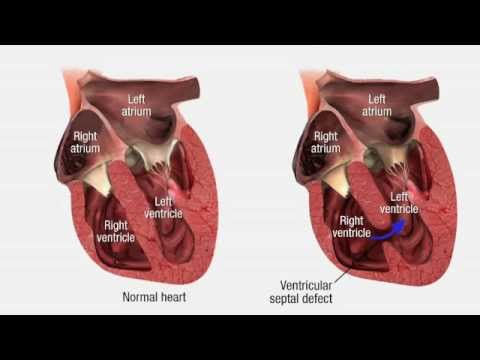 Cardiovascular Pathology – Heart Disease