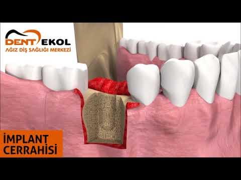 İmplant Cerrahisi - Dent Ekol Ağız Diş Sağlığı Merkezi