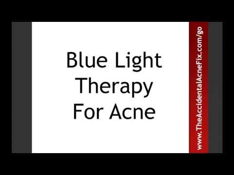 Blue Light Therapy For Acne Gives Great Results