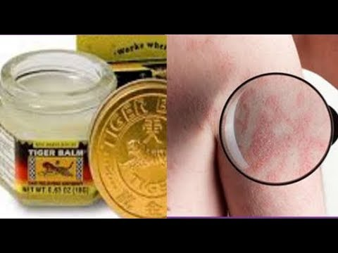 How To Know If You Have Scabies.. And 7 Natural Treatments That Work Fast (видео)