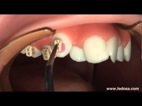 ORTOCERVERA / Ortodoncia: Cementado de Brackets Autoligado Camaleón (видео)