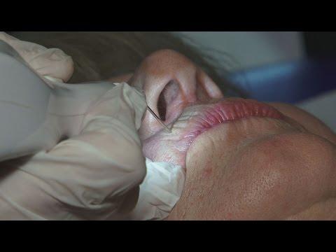 MED EST - seminar Venus Concept & Plexr Soft Surgery