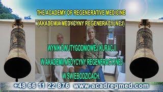 Wynik dwutygodniowej kuracji w Akademii Medycyny Regeneracyjnej w Świebodzicach.