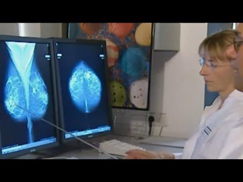 Medizinische Sensation: Deutsche Forscher entwickeln B ...