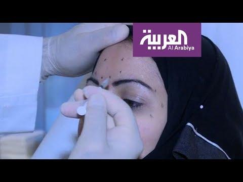 العرب اليوم - شاهد: حقنة من