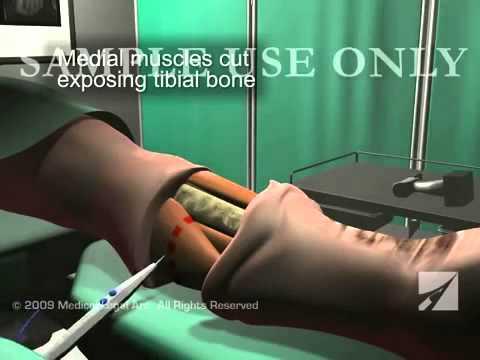 amputacion - Esta animación médica 3D ofrece una visión general del quirófano dramática de la pierna izquierda por debajo de la amputación quirúrgica de la rodilla despué...