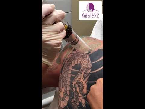 Laser Tattoo Removal Cooper City