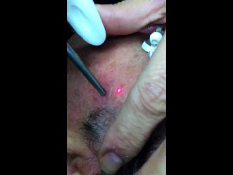 comment traiter la couperose sur les joues