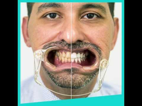 Zoom Teeth Whitening   Beverly Hills Medical Center   Abu Dhabi