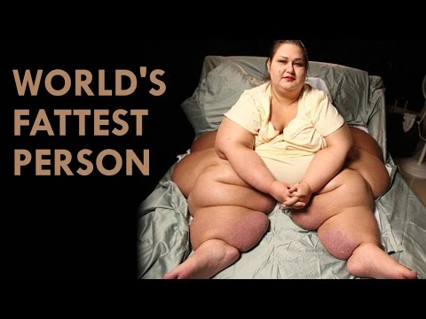 World's Fattest person ever (Guinness World Records)
