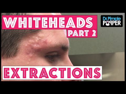 Your Daily Puke: Almost Twenty Minutes Of Whitehead Extractions