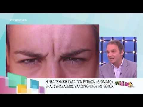 Η Ράνια Κωστάκη εξηγεί πως εξαφάνισε τις βαθιές ρυτίδες με τη μέθοδο SFUMATO
