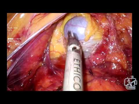 Pure laparoscopic total colectomy with ileorectal anastomosis