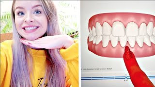 Video I'M GETTING BRACES!! + COLOURPOP HAUL | VLOGMAS 21 sophdoesvlogs MP3, 3GP, MP4, WEBM, AVI, FLV April 2018