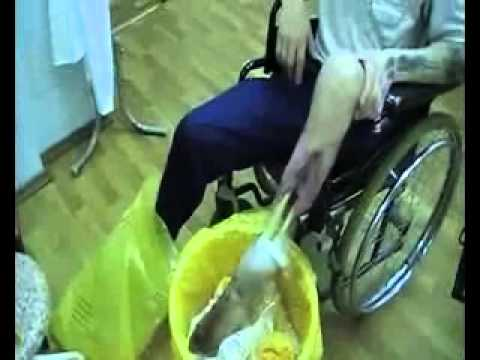 Ампутация остатков ноги у наркомана