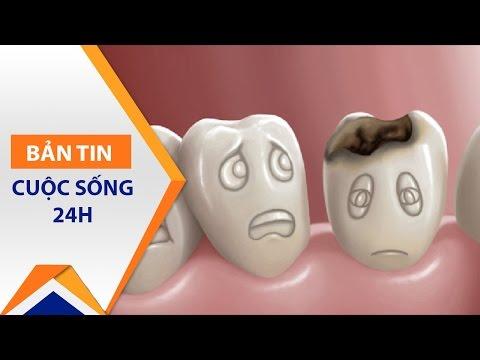 Tự mua thuốc chữa sâu răng chính là… tự sát! | VTC - Thời lượng: 2 phút, 41 giây.