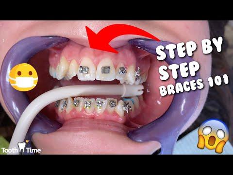 Dental Braces - Step by Step - Tooth Time Family Dentistry New Braunfels