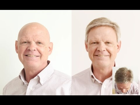 Gary's New Lace Hair Replacement System from Lordhair
