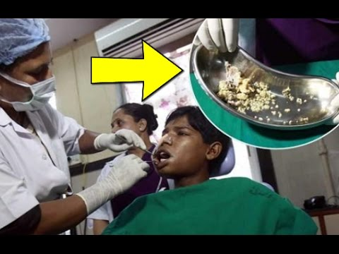 كان لديه آلم في فمه وعندما فحصه الطبيب .. أنظرو ماذا إكتشف