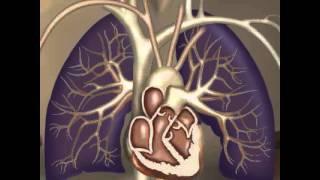 Få rådgivning om kroppen: Se 12 film om hjerte-kar-sygdom