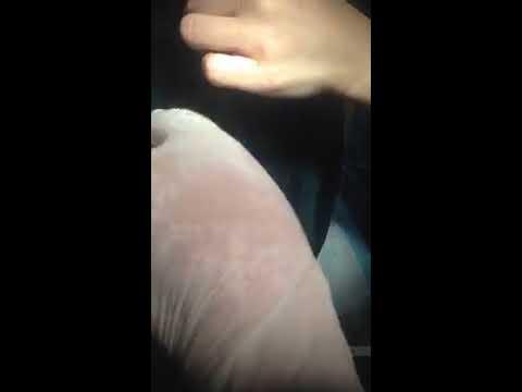 endometrial ablation using hotwater
