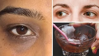 How To Remove Under Eye Dark Circles Naturally