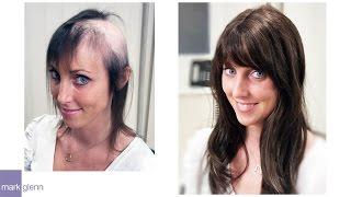 Video Female Hair Loss Solution - Mark Glenn Hair Enhancement, London MP3, 3GP, MP4, WEBM, AVI, FLV Juli 2018