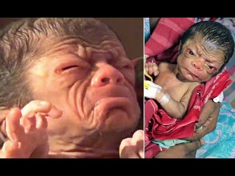 The newborn who looks like an 80 year old Rare ageing condition of baby boy