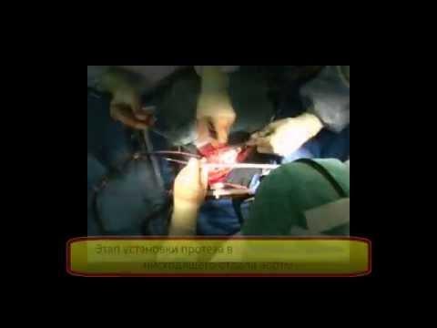 Протезирование дуги аорты при расслоении типа А